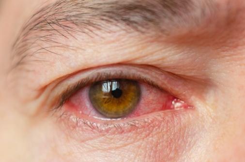 Imagem notícia Primavera contribui para aumento de casos de conjuntivite alérgica
