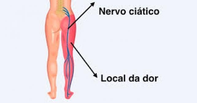 Imagem notícia Nervo ciático: o que é, sintomas e tratamentos