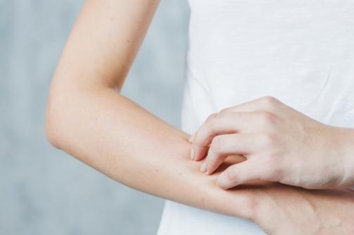 Imagem notícia Dermatite atópica: 5 coisas que você precisa saber
