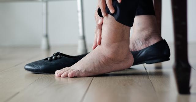 Imagem notícia 3 dicas para prevenir o inchaço no corpo