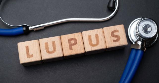 Imagem notícia  Lúpus: o que é, causas, sintomas e tratamentos